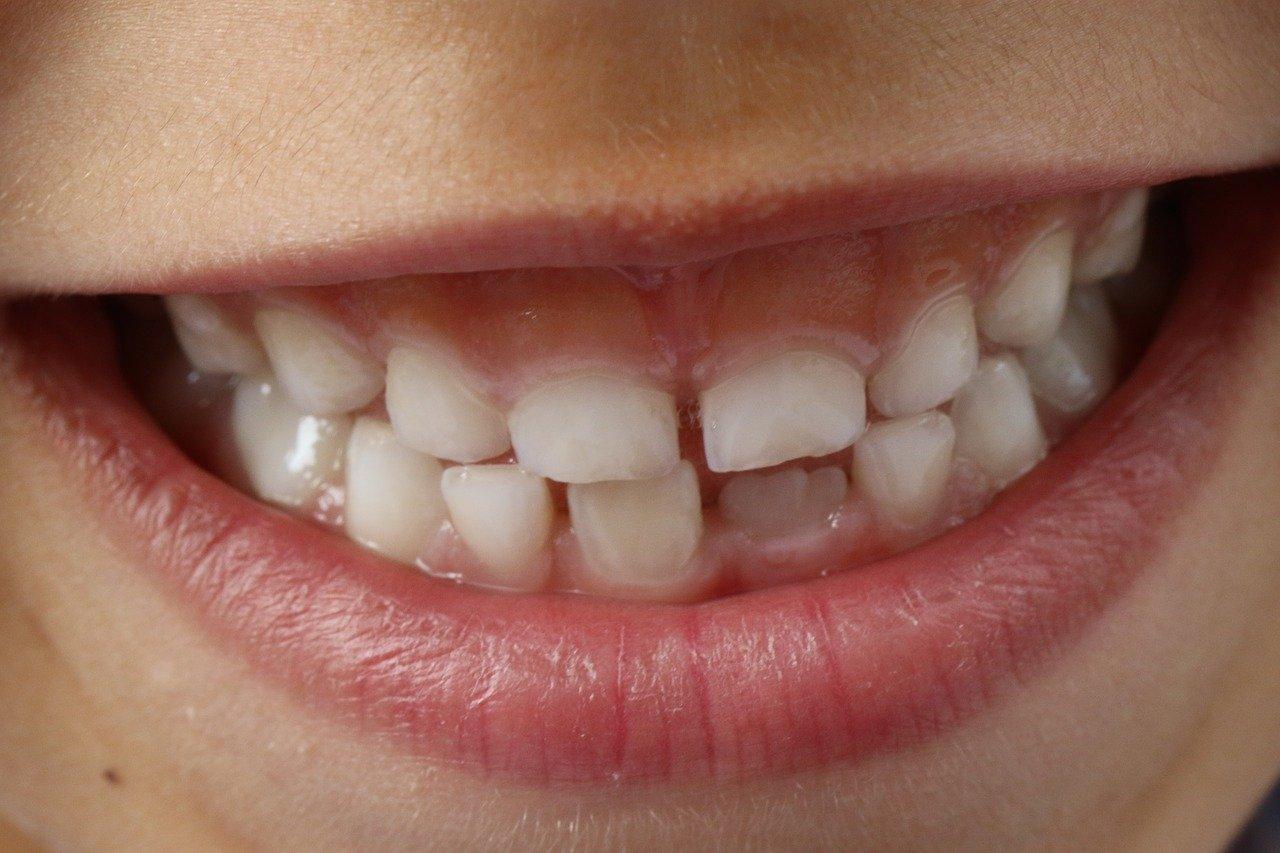 Tips for Avoiding Cavities
